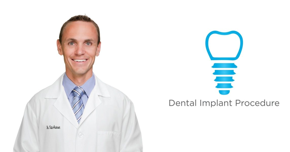 What are dental implants in Granger, IN?