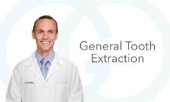 General Tooth Extraction performed by Dr. Taite Anderson, DDS